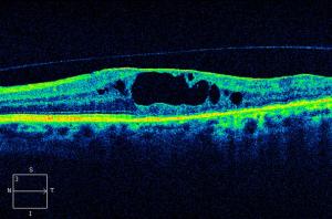 Υαλοειδικές Εγχύσεις - Οφθαλμίατρος Θεσσαλονίκη - Dr Καραμήτσος Αθανάσιος