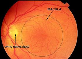 Ωχρά Κηλίδα: Θεραπεία - Οφθαλμίατρος Θεσσαλονίκη - Dr Καραμήτσος Αθανάσιος