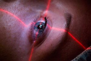 Laser Ματιών - Επέμβαση - Οφθαλμίατρος Θεσσαλονίκη - Dr Καραμήτσος Αθανάσιος