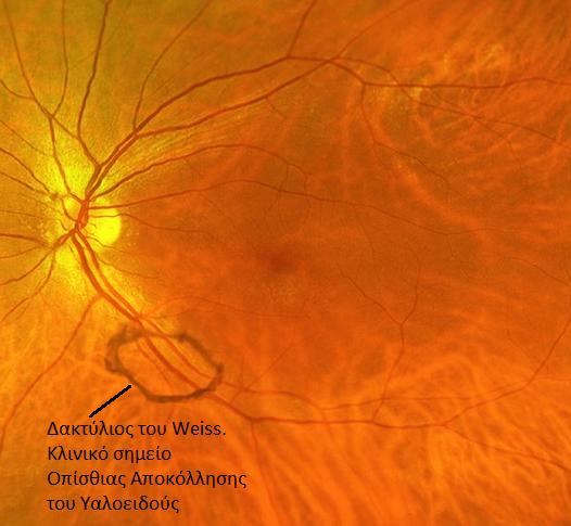 Οπίσθια Αποκόλληση Υαλοειδούς - Οφθαλμίατρος Θεσσαλονίκη - Dr Καραμήτσος Αθανάσιος