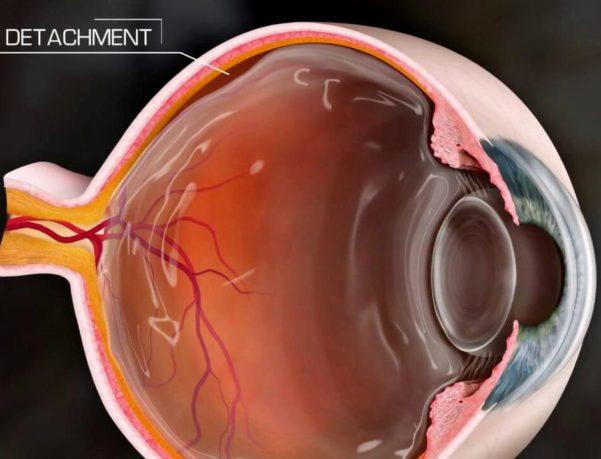 Αποκόλληση Αμφιβληστροειδούς - Οφθαλμίατρος Θεσσαλονίκη - Dr Καραμήτσος Αθανάσιος