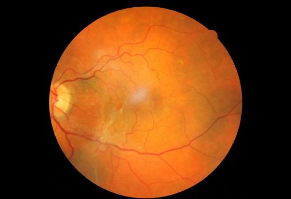 Επιωχρική Μεμβράνη - Βιτρεκτομή - Οφθαλμίατρος Θεσσαλονίκη - Dr Καραμήτσος Αθανάσιος
