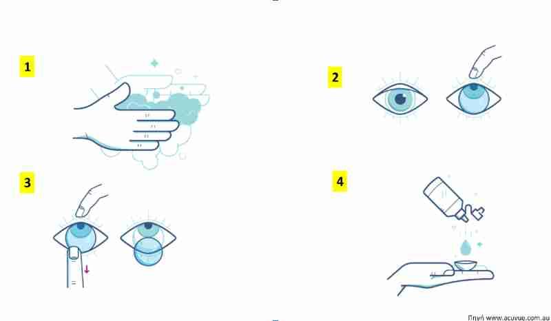 Φακοί Επαφής - Οφθαλμίατρος Θεσσαλονίκη - Dr Καραμήτσος Αθανάσιος