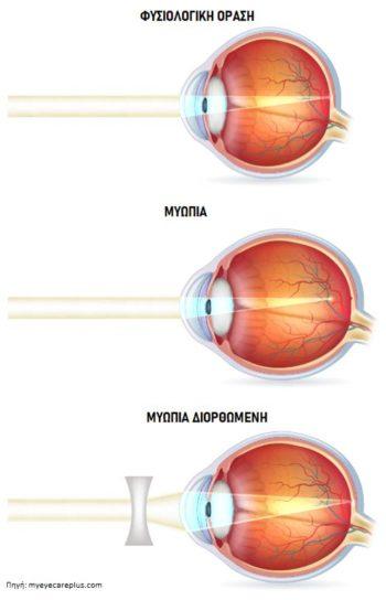 Μυωπία - Οφθαλμίατρος Θεσσαλονίκη - Dr Καραμήτσος Αθανάσιος