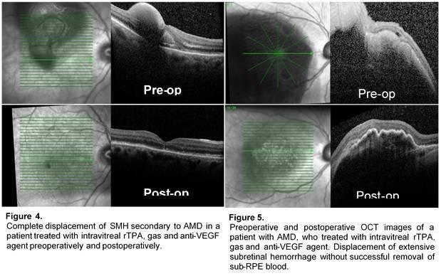 Δημοσίευση Νέας Μελέτης - Οφθαλμίατρος Θεσσαλονίκη - Dr Καραμήτσος Αθανάσιος