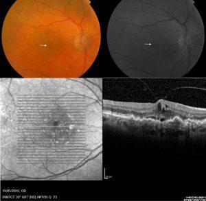 Δημοσίευση Νέας Μελέτης – Οπή ωχράς - Οφθαλμίατρος Θεσσαλονίκη - Dr Καραμήτσος Αθανάσιος