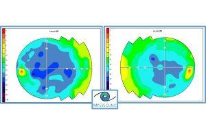 Εξέταση Οπτικών Πεδίων - Οφθαλμίατρος Θεσσαλονίκη - Dr Καραμήτσος Αθανάσιος