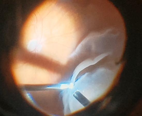 Χειρουργική Υαλοειδούς Αμφιβληστροειδούς - Οφθαλμίατρος Θεσσαλονίκη - Dr Καραμήτσος Αθανάσιος